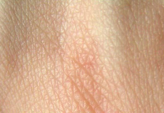 Cyclosporin untersucht zur äußerlichen Behandlung von psoriasis und atopische dermatitis